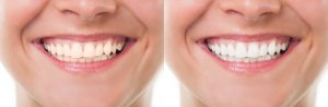 Brookhaven Family Dentistry Reviews