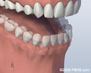 Bar Attachment Denture Attached Image
