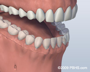 Screw Retained Denture Attached Image