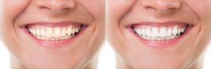 Affordable Cosmetic Dentistry Atlanta