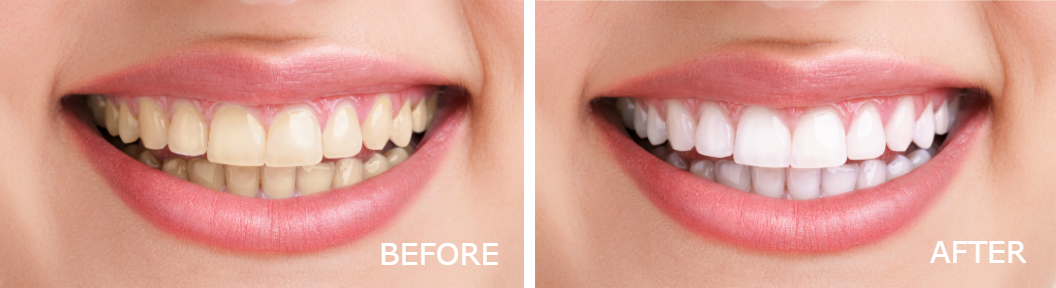 Teeth Whitening Brookhaven before and after