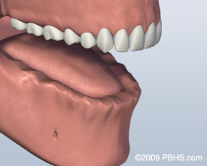 Ball Attachment Denture Before Image