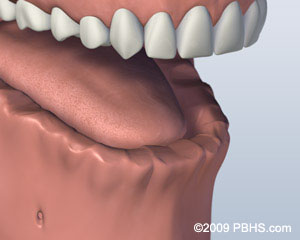 Bar Attachment Denture Before Image