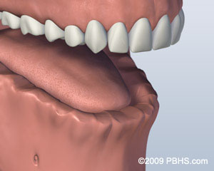 Screw Retained Denture Before Image