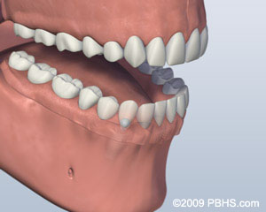 Ball Attachment Denture Attached Image