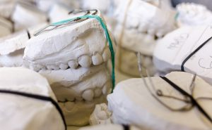 Dentures in Brookhaven & Chamblee